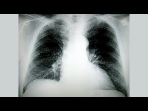 Pressione arteriosa 119 90