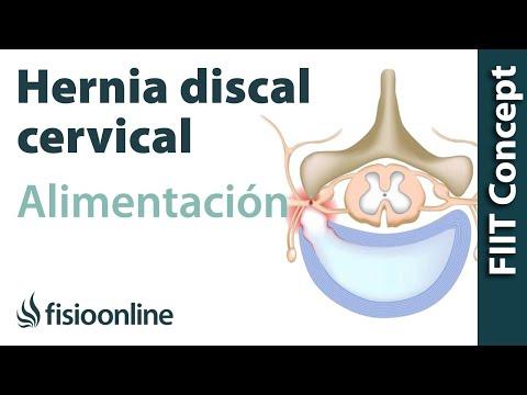 Dolor muscular en la espalda