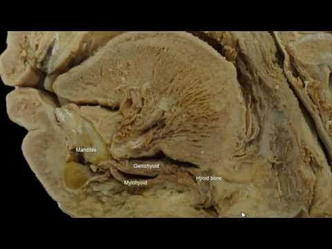 Clinical Anatomy of the Hypoglossal Nerve