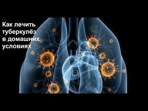 Как лечить туберкулёз в домашних условиях.