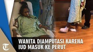 Wanita Kehilangan Indung Telur, Rahim, & Jari Kaki karena Kontrasepsi IUD Bermasalah & Masuk Perut