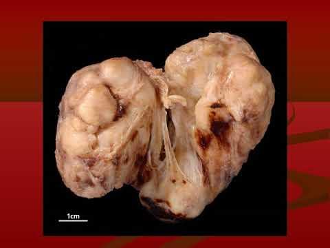 Prostatitis krónikus mandulitis miatt