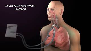Passy-Muir Valve with Mechanical Ventilation