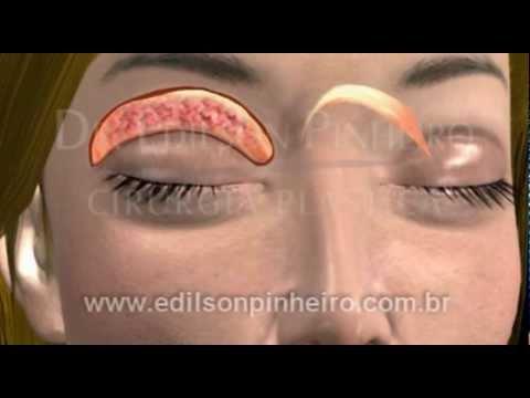 Pene dopo la chirurgia fimosi