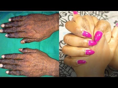 La cosmétologie le massage pour les paupières