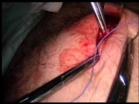 Chirurgia in prostata
