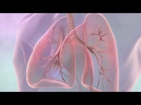 Video Treating lung cancer
