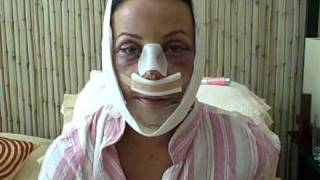 Facial Plastic Surgery: Recovery Day 2
