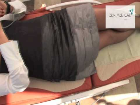Usuwania kości w operacji zatrzymania
