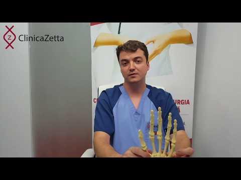 Cum să tratezi articulațiile umflate ale degetelor