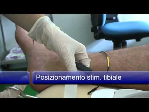 Metilazione e diabete