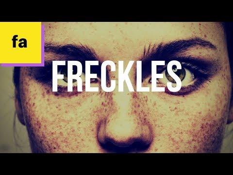 Batang babae na may mga freckles Litrato