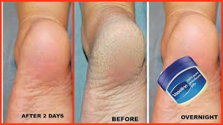 HOW TO GET SOFT FEET OVERNIGHT, Get rid of rough cracked heels