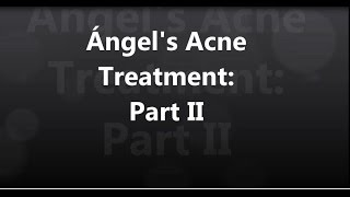 Ángel's Acne Treatment: #2