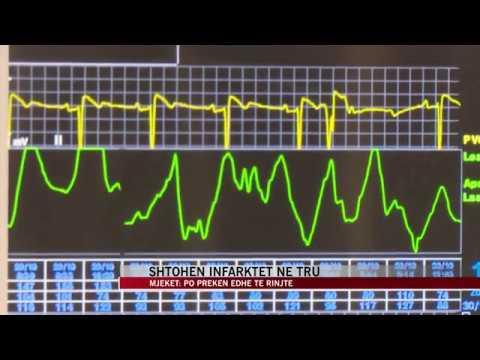 Histori mjekësor e CHD dhe hipertensionit