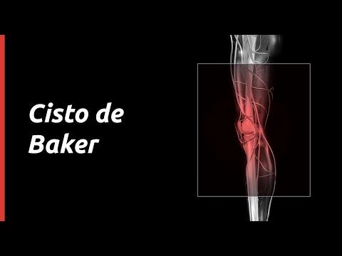 Artroza terry a genunchiului