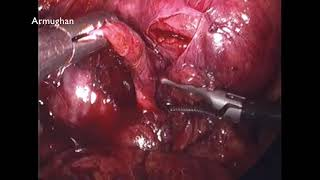 Completion Laparoscopic Cholecystectomy