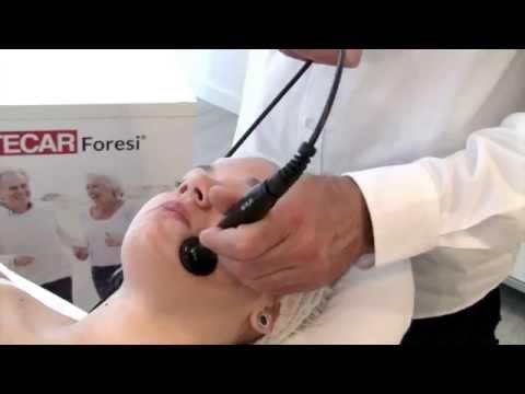 A vasocostrizione pressione sanguigna