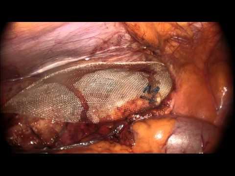 Che togliere un prurito di gambe a varicosity