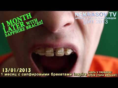 NEKRASOV TV сапфировые брекеты 1day BRACES inspire / 1 month later with braces