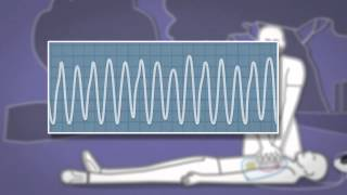 Vidéo de presentation du defibrilateur Heartsine samariatan 500P