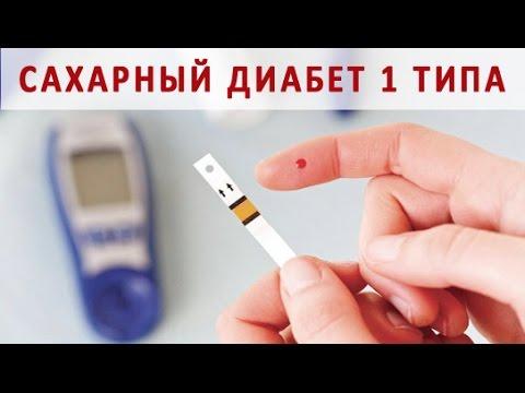 Сахарный диабет 1 типа. Причины и лечение инсулинозависимого сахарного диабета