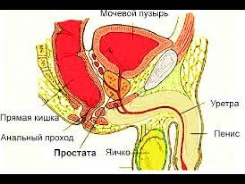 T2nxm0 предстательной железы