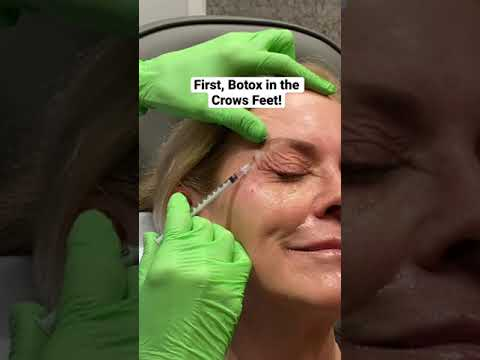 NON SURGICAL NOSE JOB! NO surgery NO downtime! Before and After