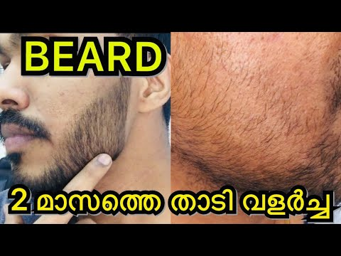Download Minoxidil 5 Review In Malayalam Video 3GP Mp4 FLV