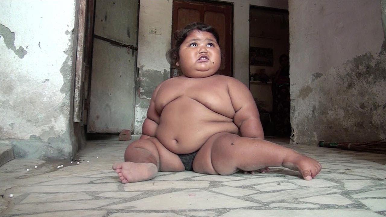 Индийская девочка в 1 год и 4 месяца весит 25 кг