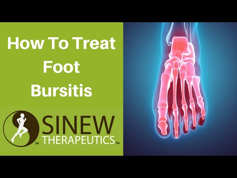 Video How To Treat Foot Bursitis and Speed Recovery