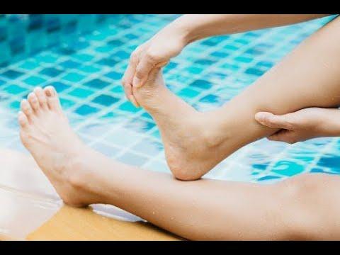Deformazione osteoartrite del ginocchio