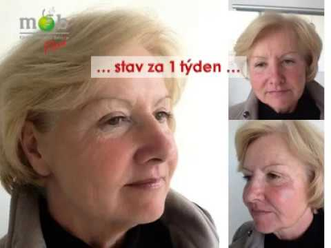 Derma dokonalý krém proti stárnutí