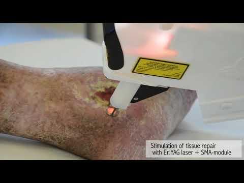 Пигментные пятна на лице после мезотерапии