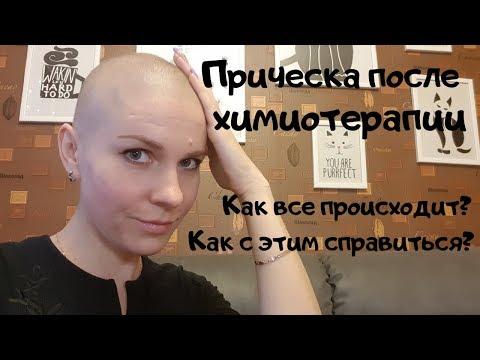 Прическа после химиотерапии. Когда волосы начинают выпадать?