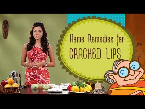 Video Chapped Lips - Ayurvedic Home Remedies to treat Dry Cracked Lips - Natural Beauty Tips
