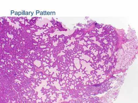 Ovarian cancer ca125