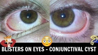 ♡ Bubbles On Your Eyeball • Conjunctival Chemosis/Cyst ♡
