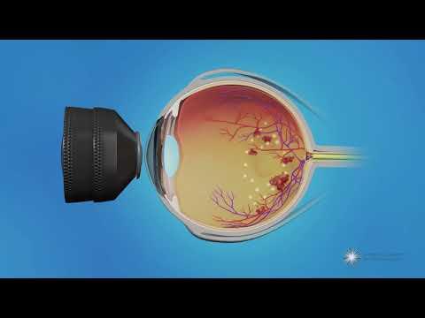 Fizioterápiás látáskezelés