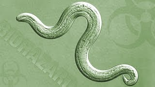 Rat Lungworm - What You Need to Know. What You Need to Do   Insights on PBS Hawai'i