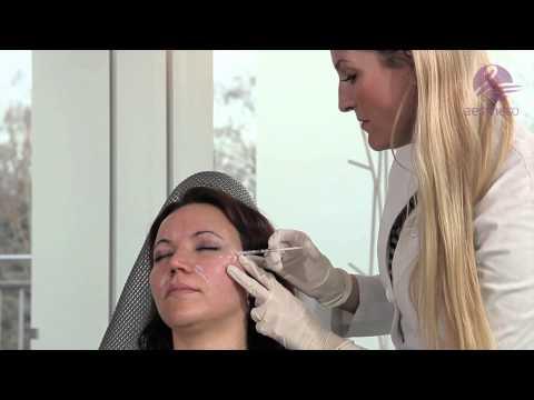 Die Neigung der Haut zur Pigmentation