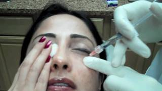 Restylane Injection to Lower Eyelid Tear Troughs to Reduce Dark Circles