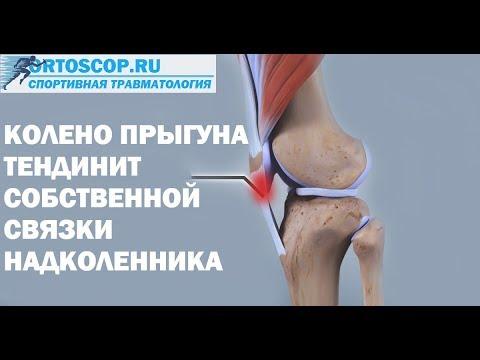 Реабилитация после эндопротезирования коленного сустава в домашних