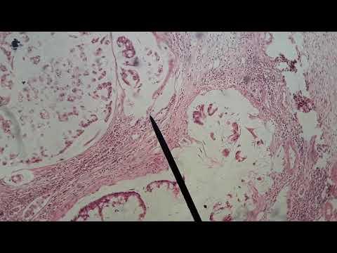Cancer ovaire et papillomavirus