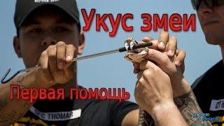 УКУС ЗМЕИ / SNAKE BITE
