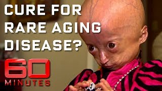 Rare disease that ages children eight times faster than normal  | 60 Minutes Australia