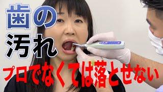 歯の汚れのなかにはプロでなくては落とせないものがある?