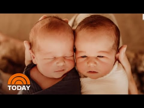 Bode Miller And Wife Morgan Announce Birth Of Their Twins: See The Pics | TODAY