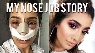 MY NOSE JOB SURGERY STORY AND VLOG - Cost and Experience