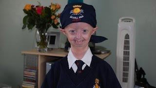 Progeria sufferer Hayley Okines dies, aged 17